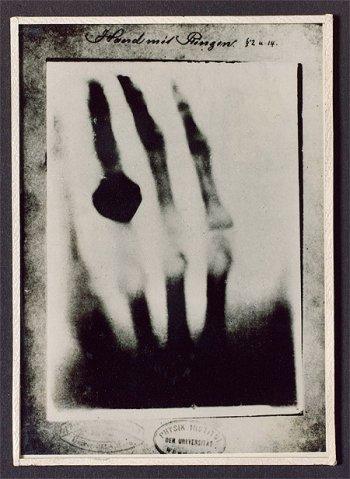 фото рентген вильгельм конрад